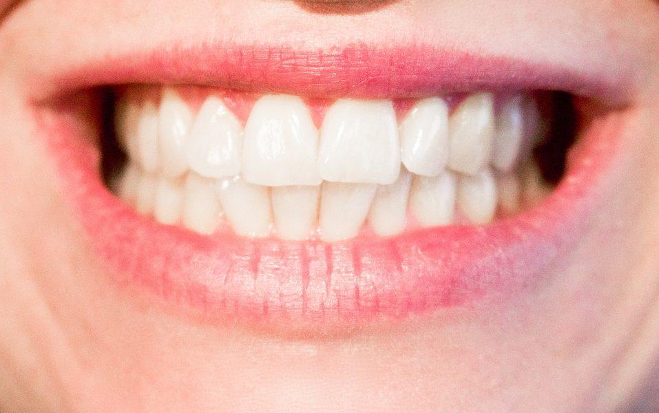 QE : Dangers liés à la présence de mercure dans les plombages dentaires